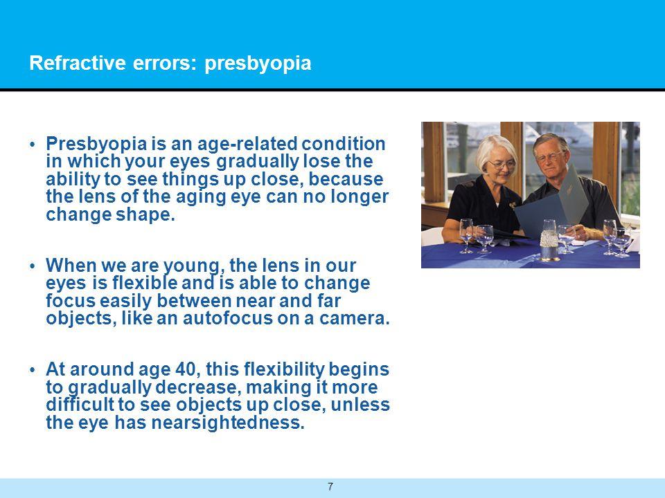 Refractive errors: presbyopia