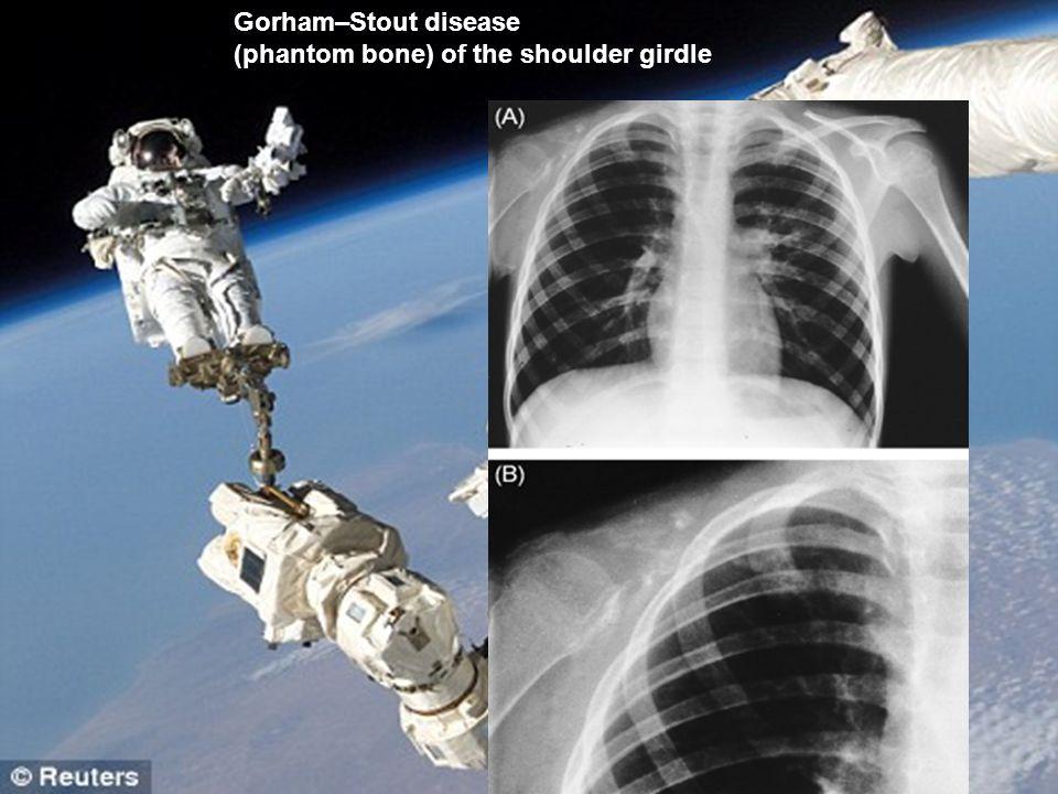 Gorham–Stout disease (phantom bone) of the shoulder girdle
