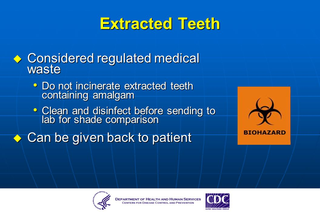 Extracted Teeth Considered regulated medical waste