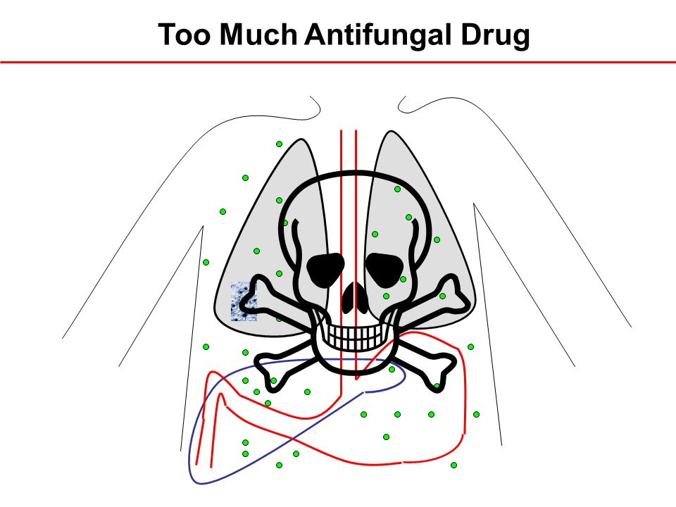 Too Much Antifungal Drug