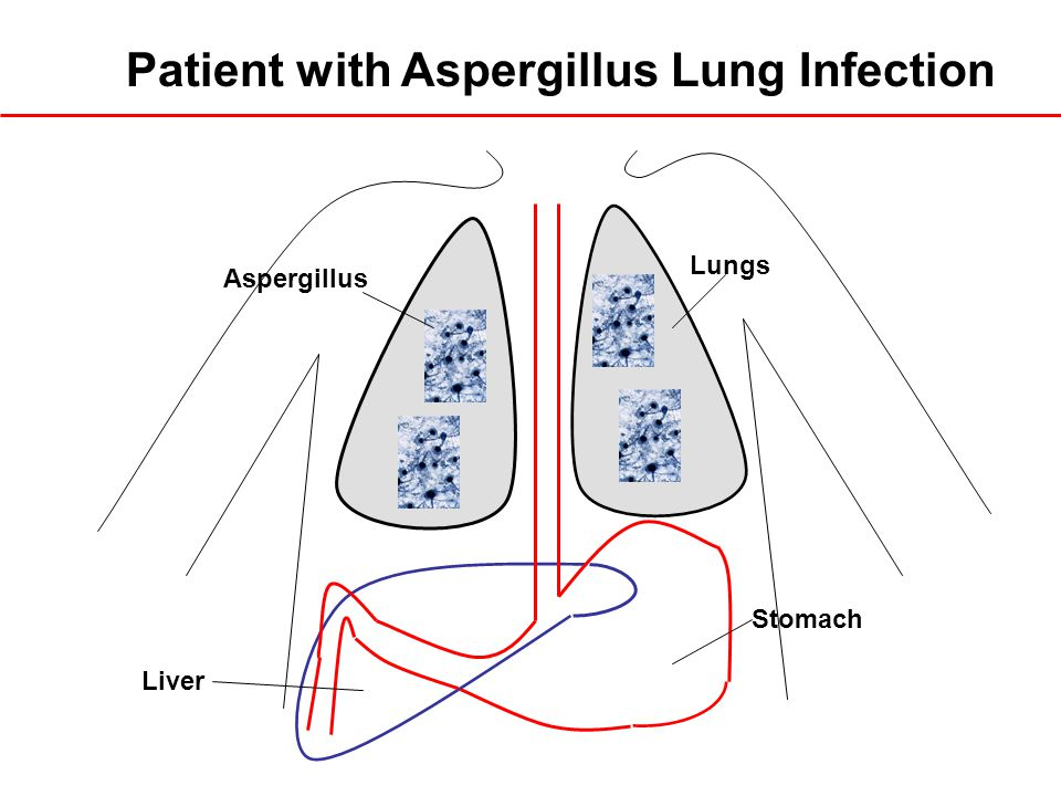 Patient with Aspergillus Lung Infection