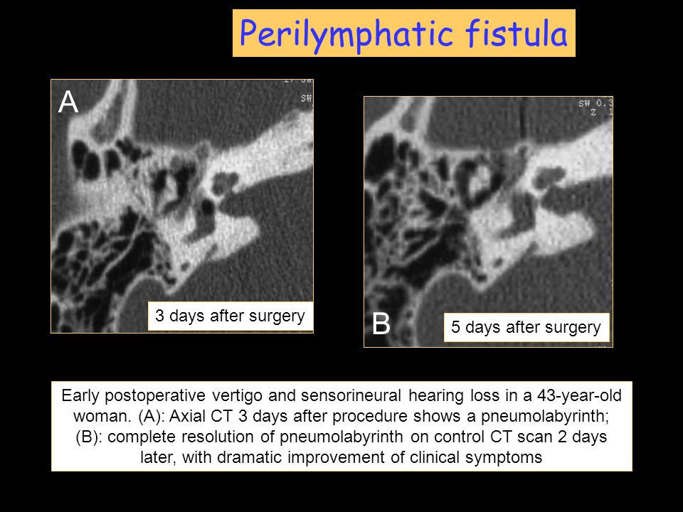 Perilymphatic fistula