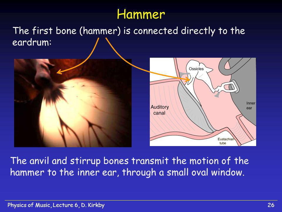 Hammer The first bone (hammer) is connected directly to the eardrum: