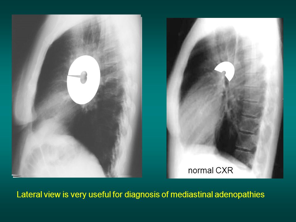 normal CXR Lateral view is very useful for diagnosis of mediastinal adenopathies