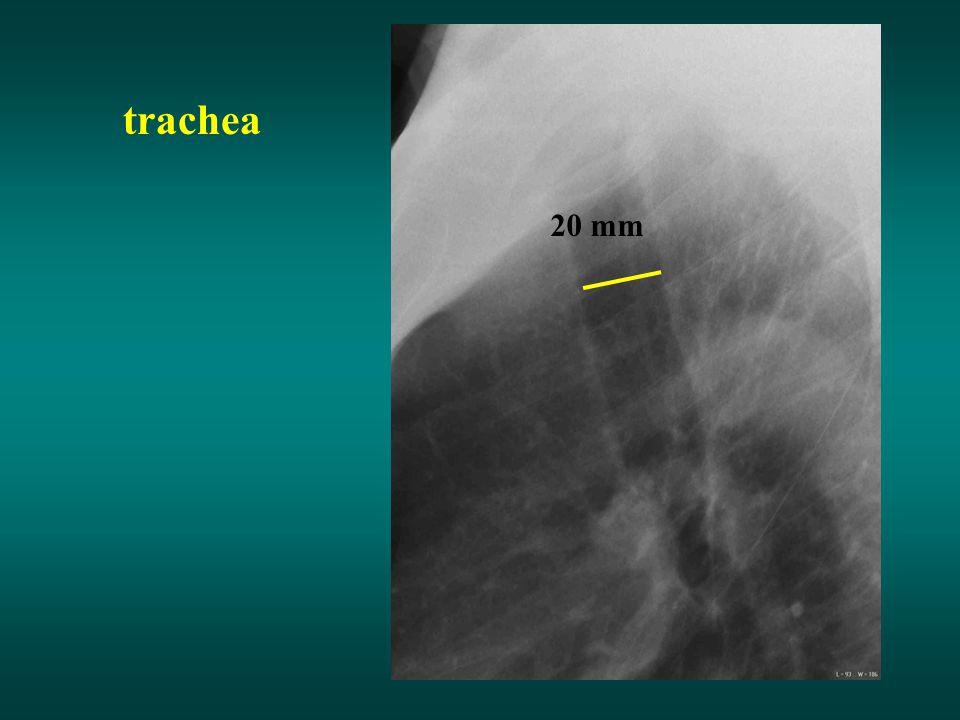 trachea 20 mm