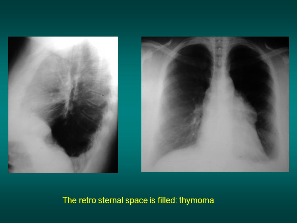 The retro sternal space is filled: thymoma