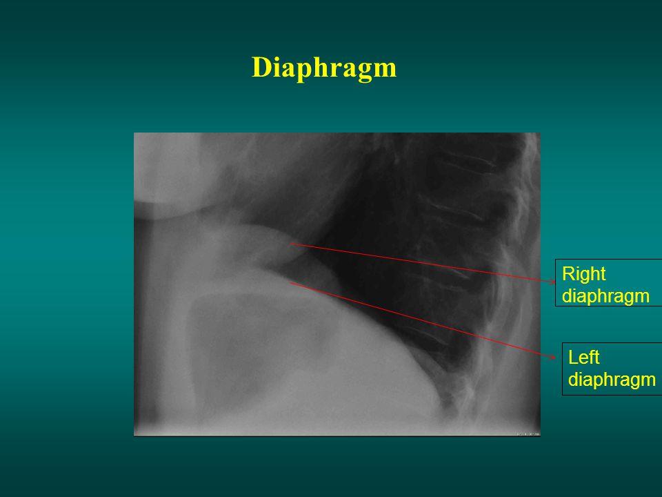 Diaphragm Right diaphragm Left diaphragm