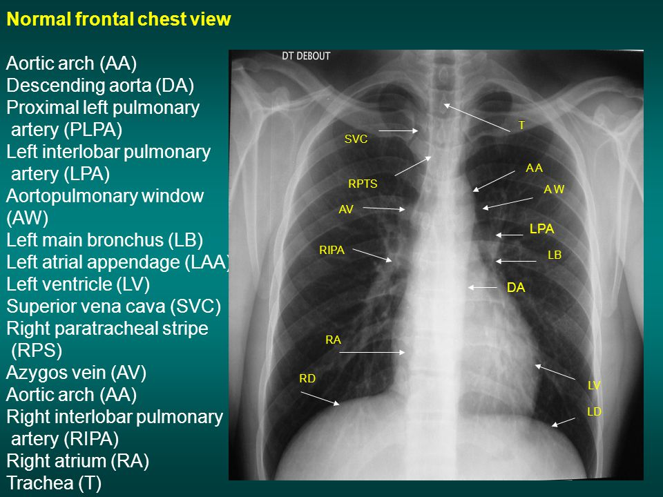 Normal frontal chest view Aortic arch (AA) Descending aorta (DA)