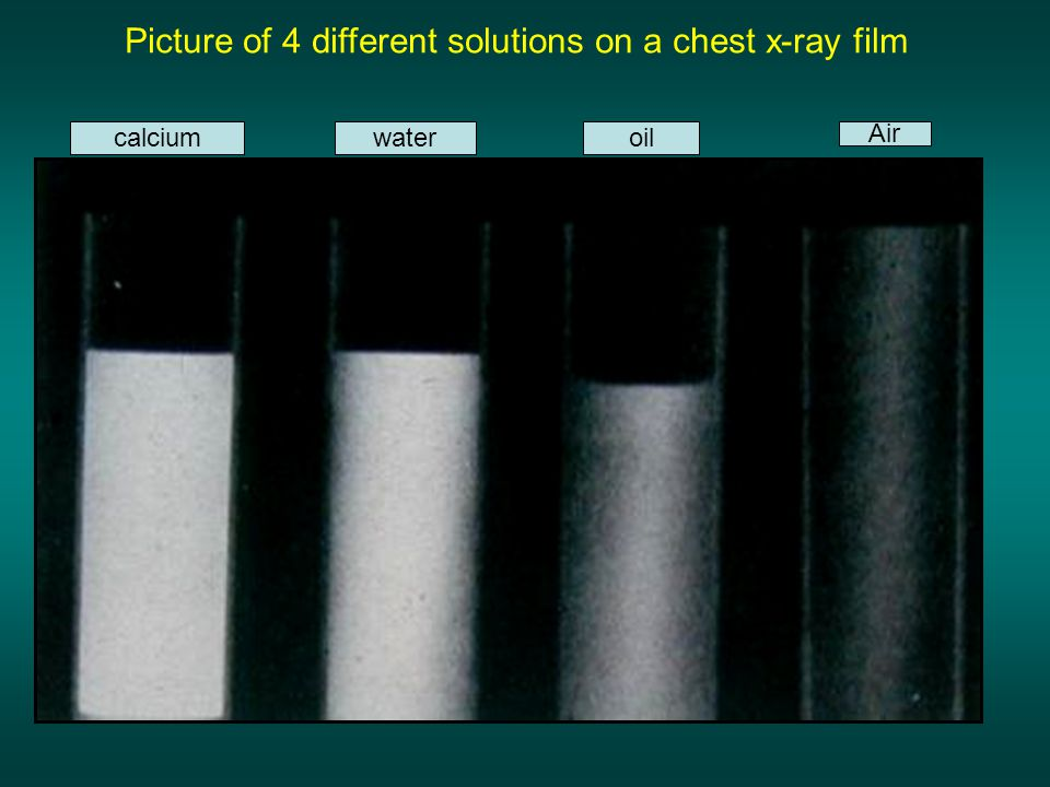 Picture of 4 different solutions on a chest x-ray film