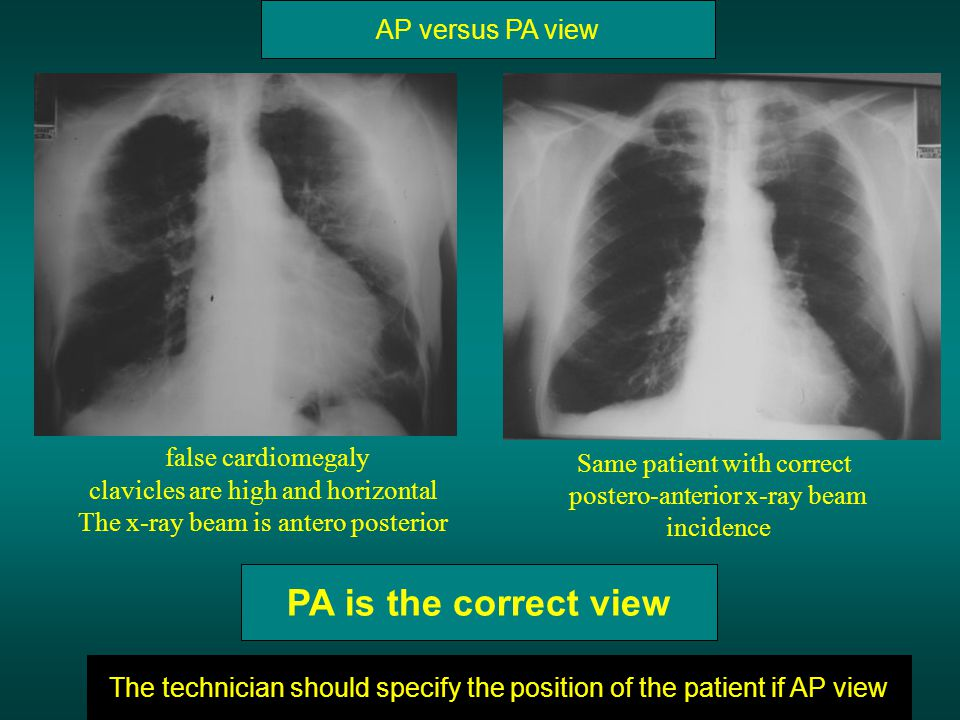 PA is the correct view false cardiomegaly AP versus PA view