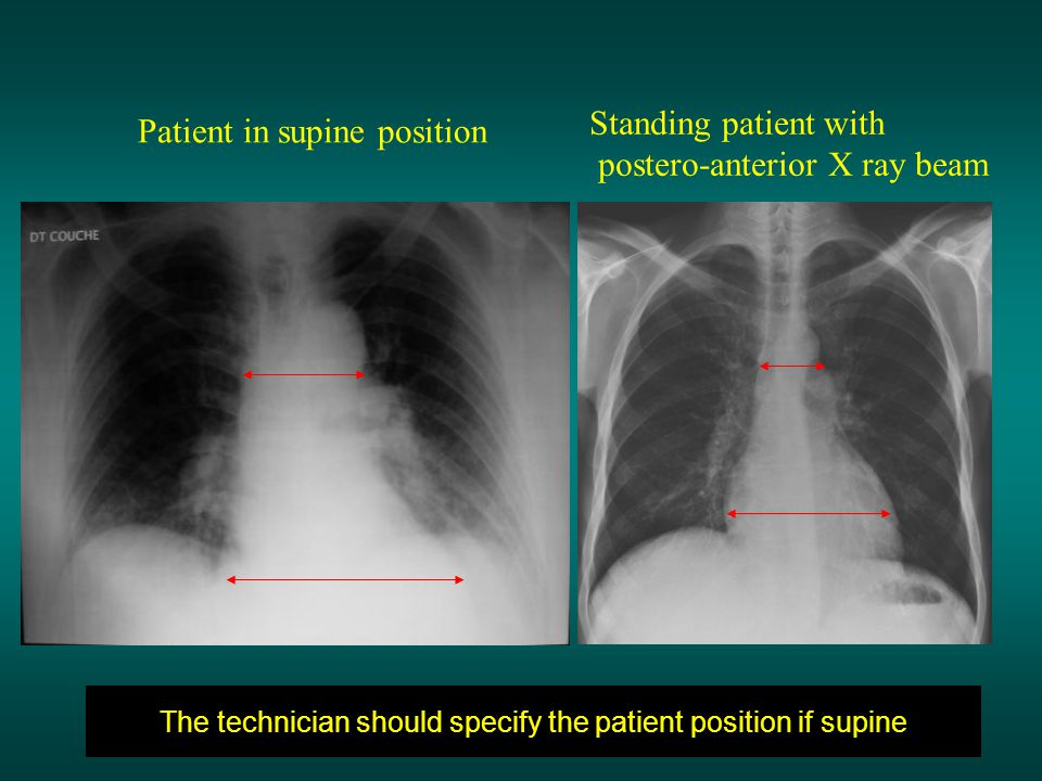 The technician should specify the patient position if supine