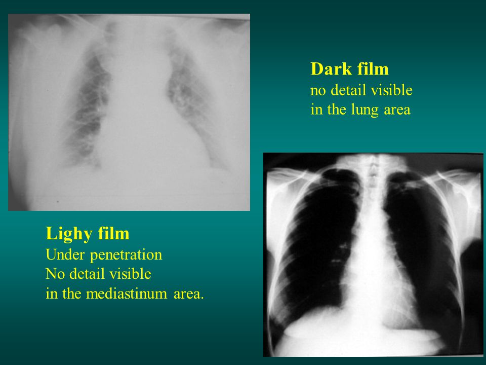 Dark film Lighy film no detail visible in the lung area