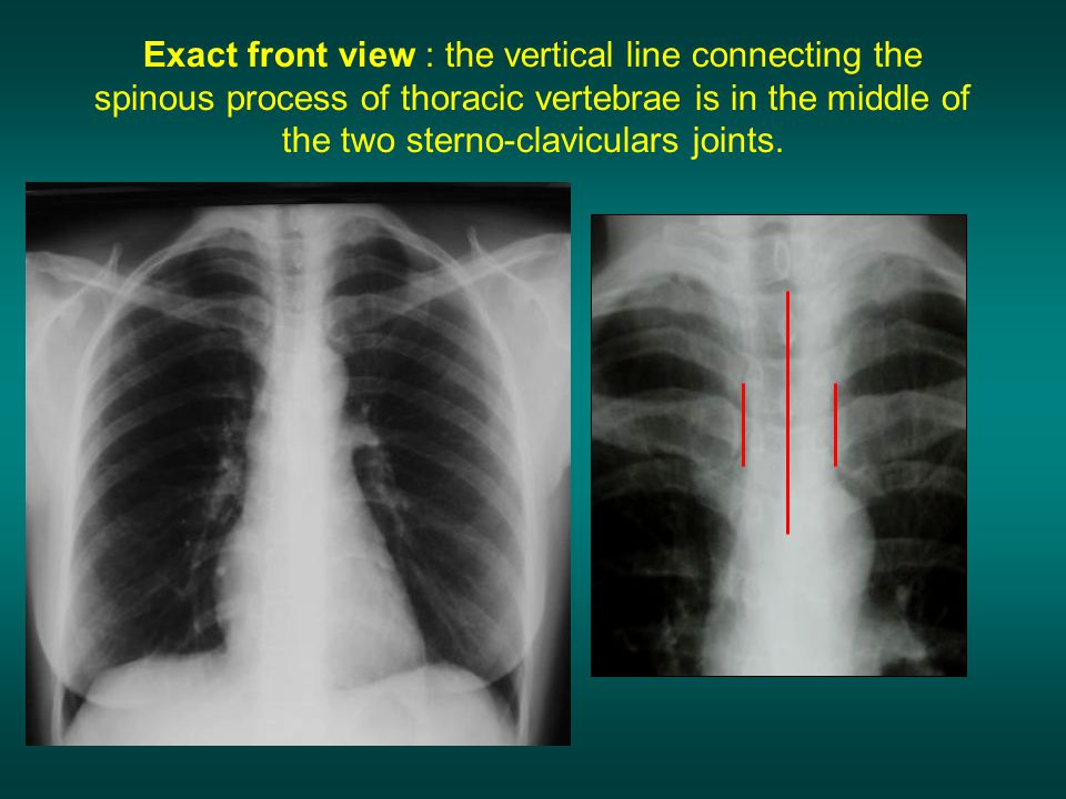 Exact front view : the vertical line connecting the spinous process of thoracic vertebrae is in the middle of the two sterno-claviculars joints.