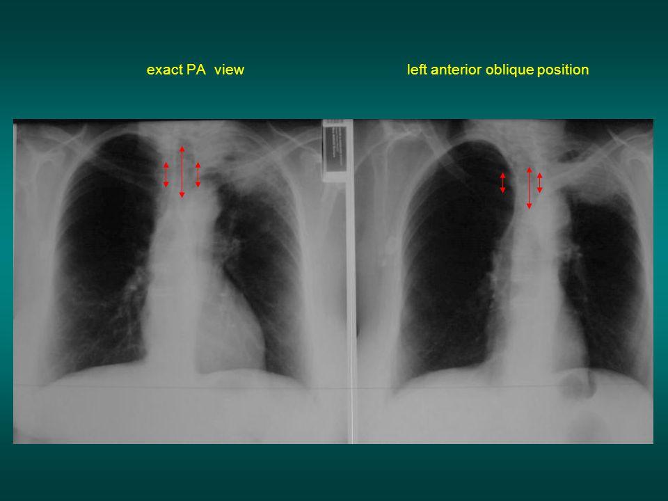 exact PA view left anterior oblique position