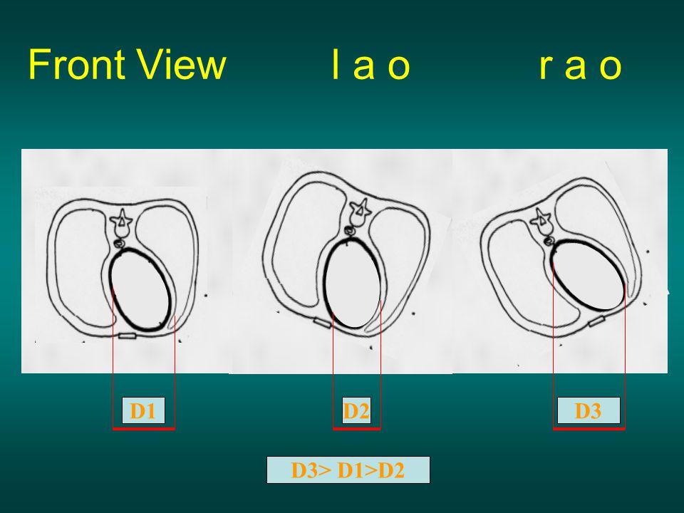 Front View l a o r a o D1 D2 D3 D3> D1>D2
