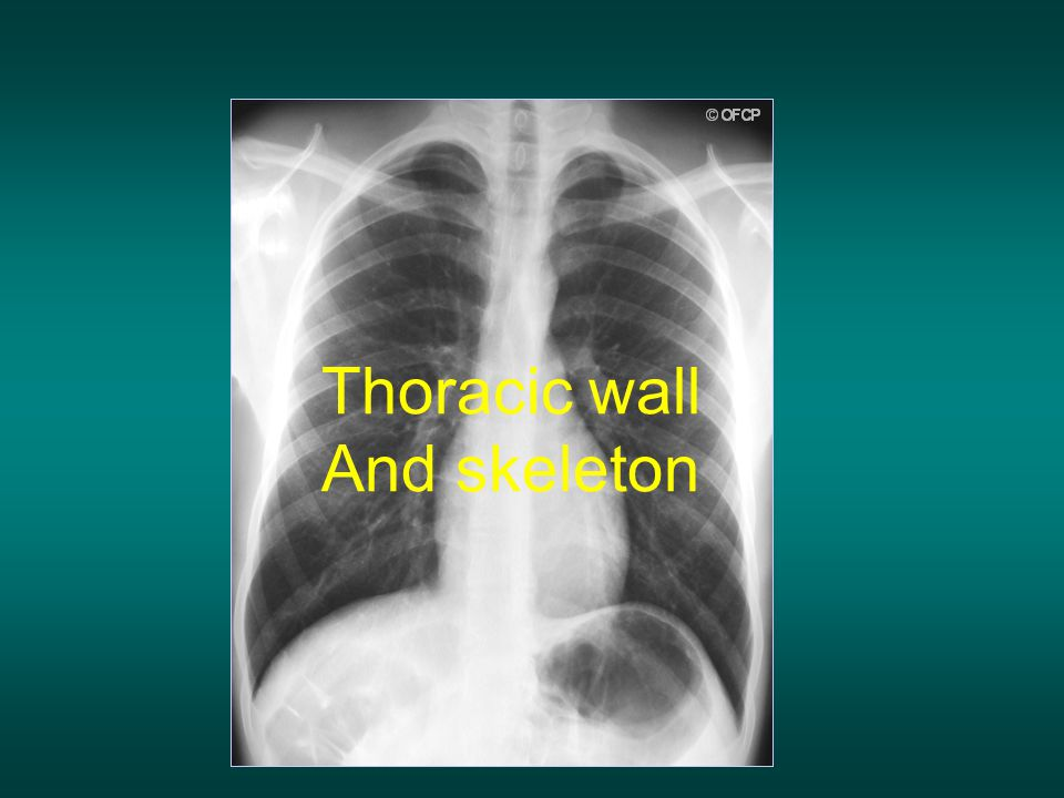 Thoracic wall And skeleton