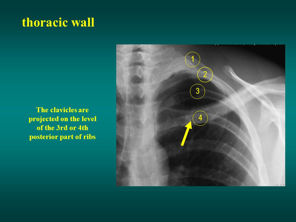 thoracic wall 1. 3. The clavicles are projected on the level of the 3rd or 4th posterior part of ribs.