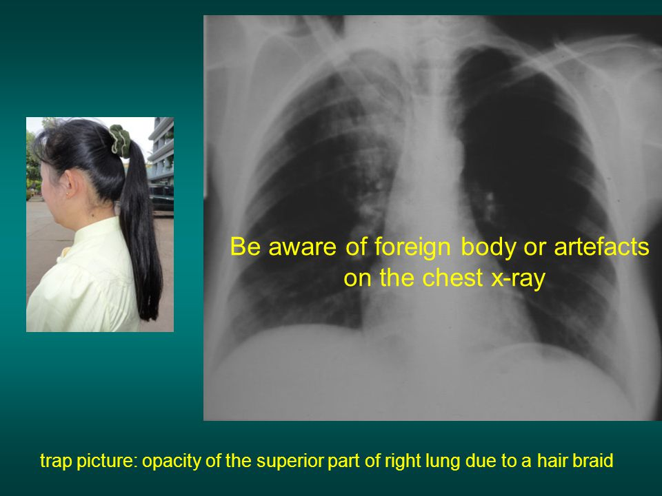 Be aware of foreign body or artefacts