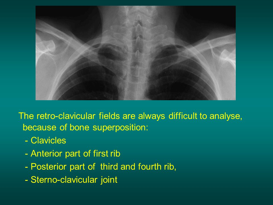 The retro-clavicular fields are always difficult to analyse, because of bone superposition:
