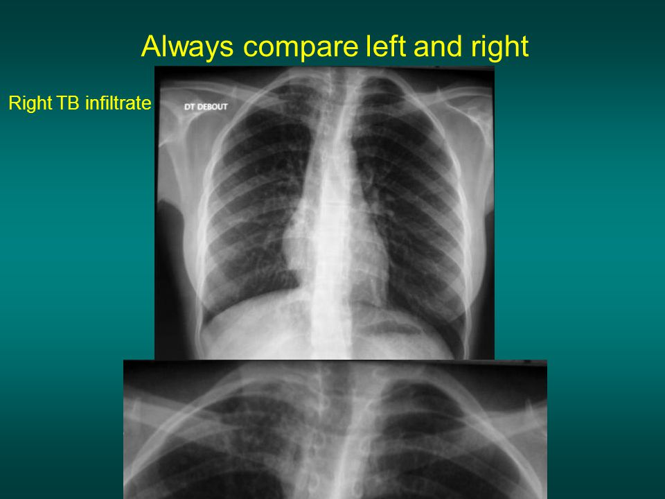 Always compare left and right