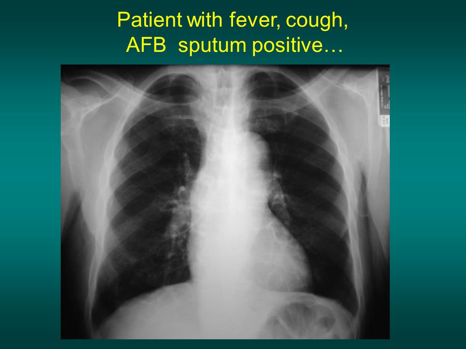 Patient with fever, cough,
