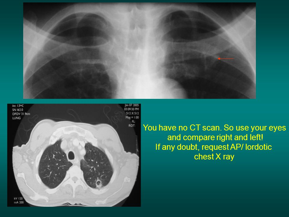 You have no CT scan. So use your eyes and compare right and left!