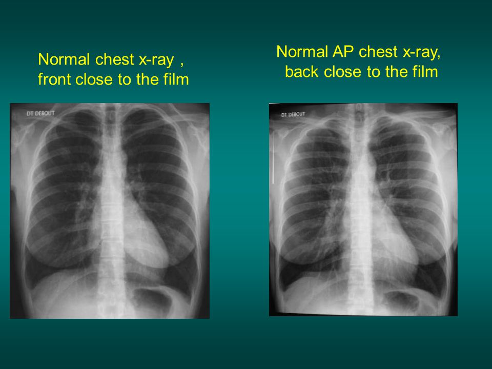 Normal AP chest x-ray, back close to the film Normal chest x-ray , front close to the film