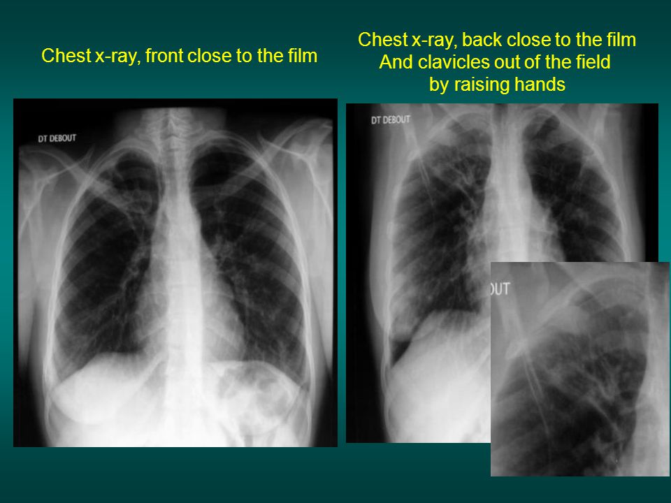 Chest x-ray, back close to the film And clavicles out of the field