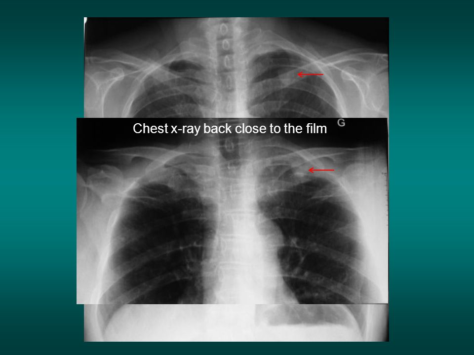Chest x-ray back close to the film
