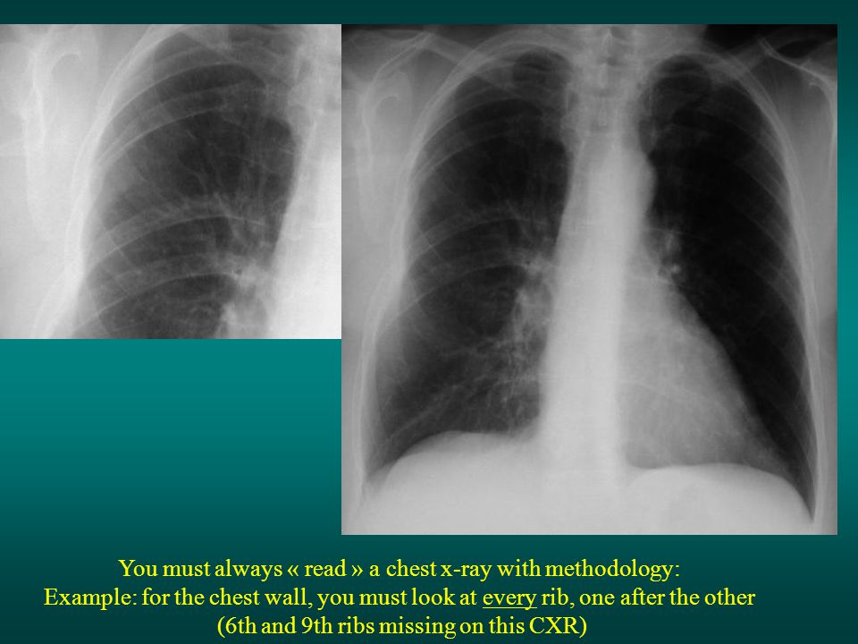 You must always « read » a chest x-ray with methodology: