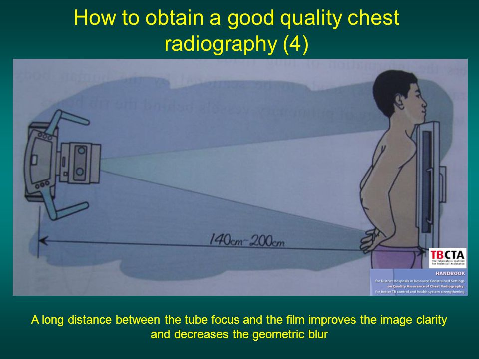How to obtain a good quality chest radiography (4)