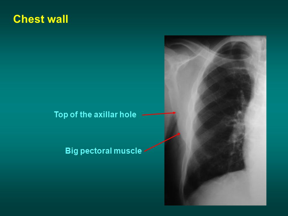 Chest wall Top of the axillar hole Big pectoral muscle