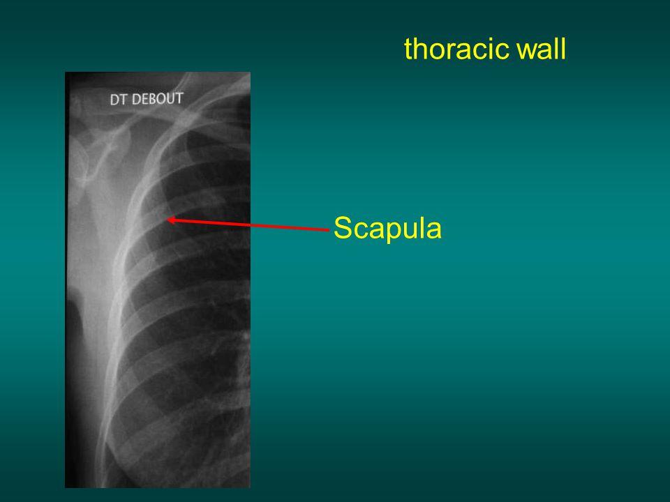 thoracic wall Scapula