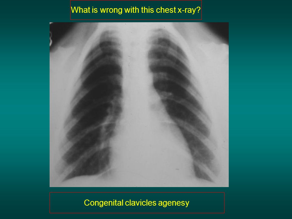 What is wrong with this chest x-ray