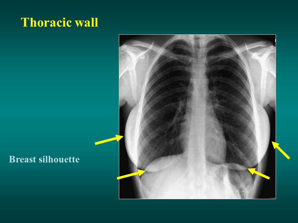 Thoracic wall Breast silhouette