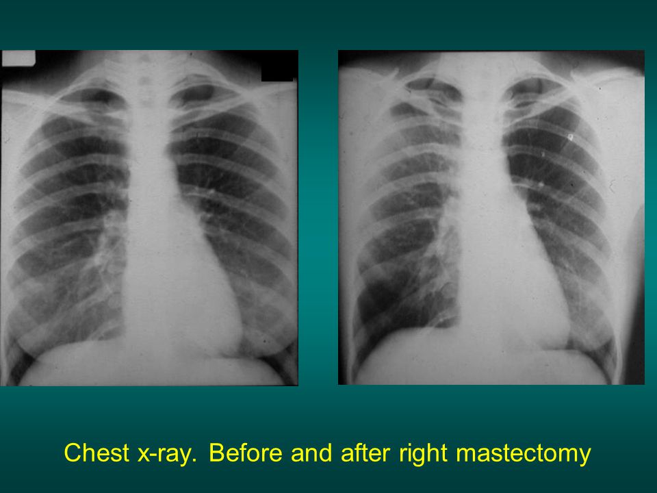 Chest x-ray. Before and after right mastectomy