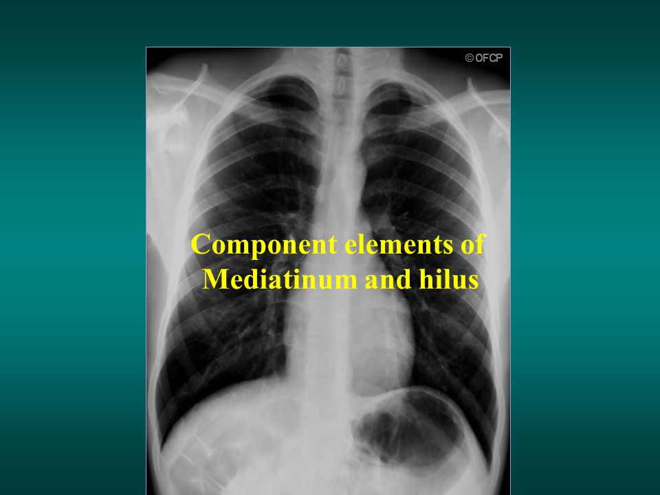 Component elements of Mediatinum and hilus