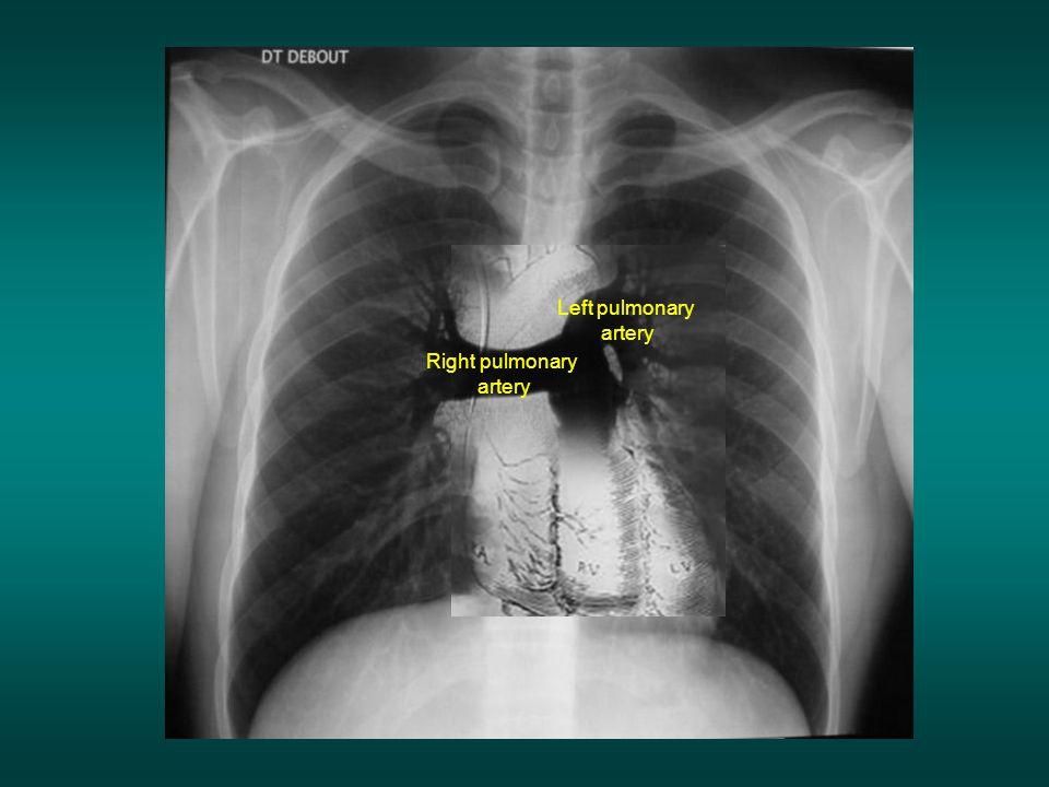 Left pulmonary artery Right pulmonary artery