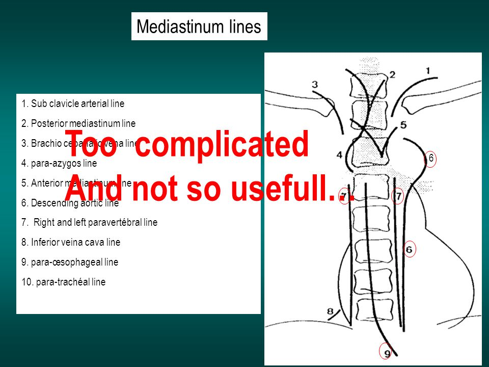 Too complicated And not so usefull… Mediastinum lines