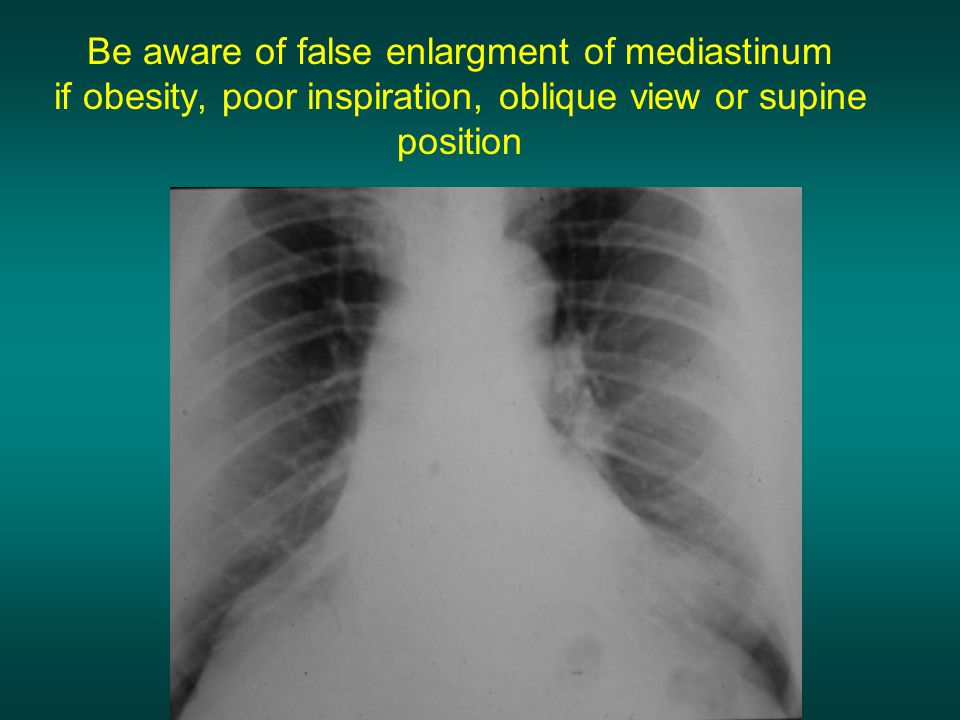 Be aware of false enlargment of mediastinum if obesity, poor inspiration, oblique view or supine position