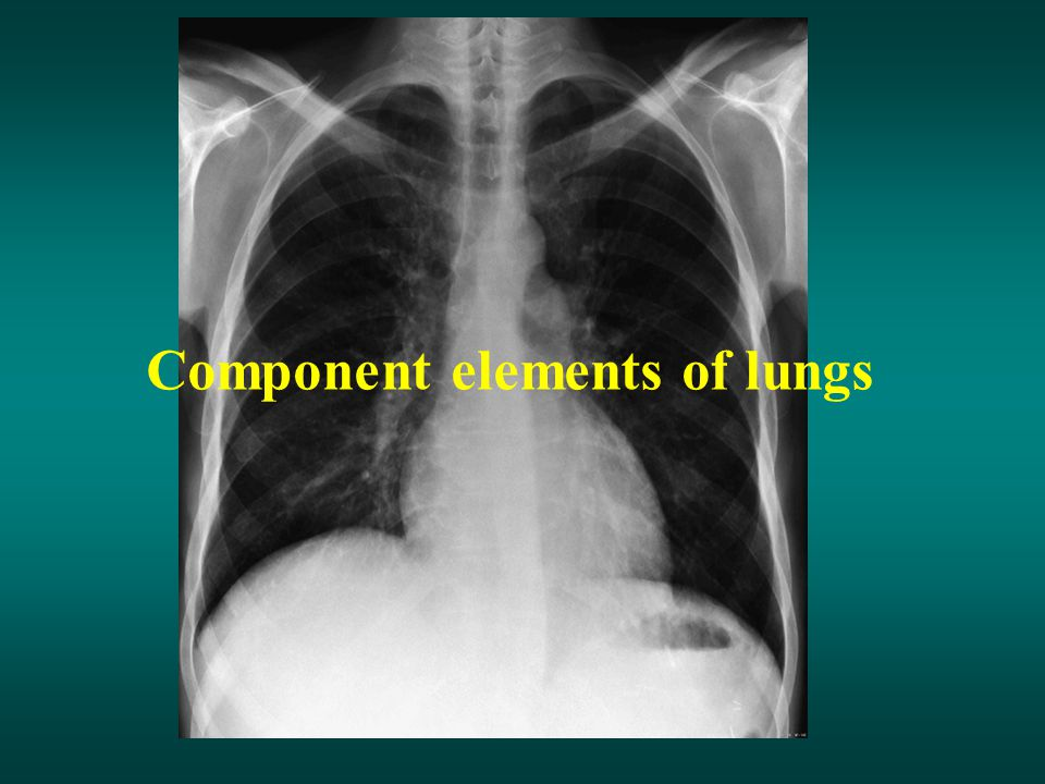 Component elements of lungs