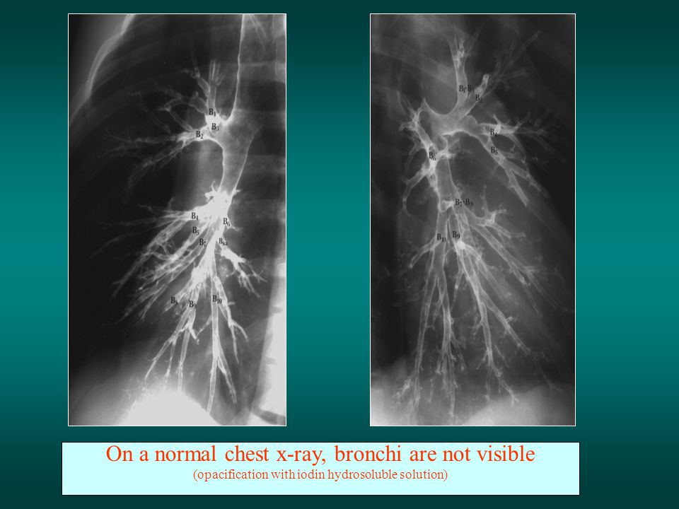 On a normal chest x-ray, bronchi are not visible