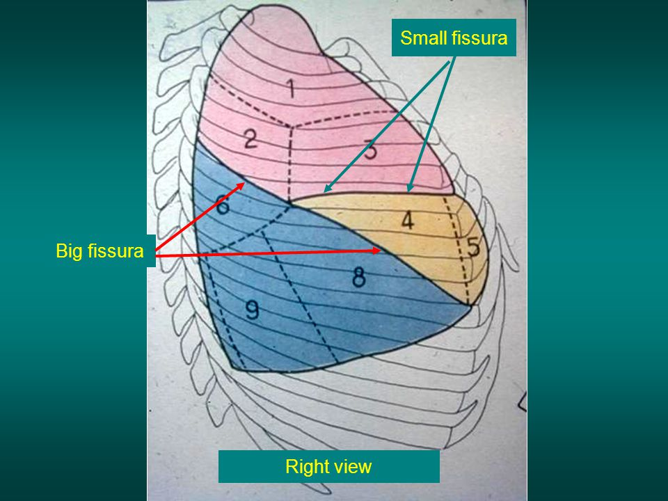 Small fissura Big fissura Right view