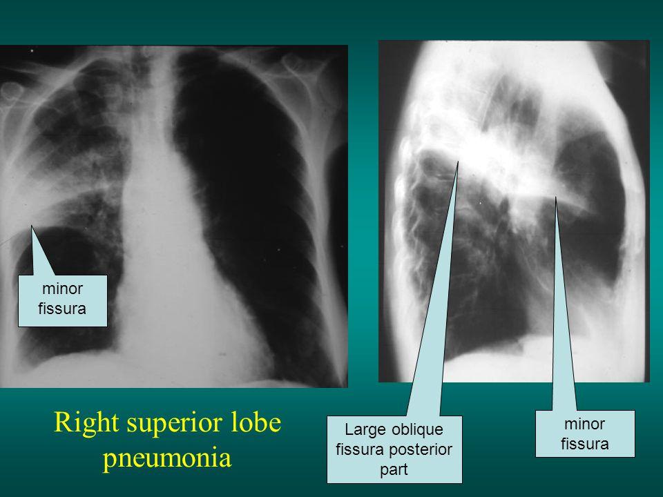 Right superior lobe pneumonia