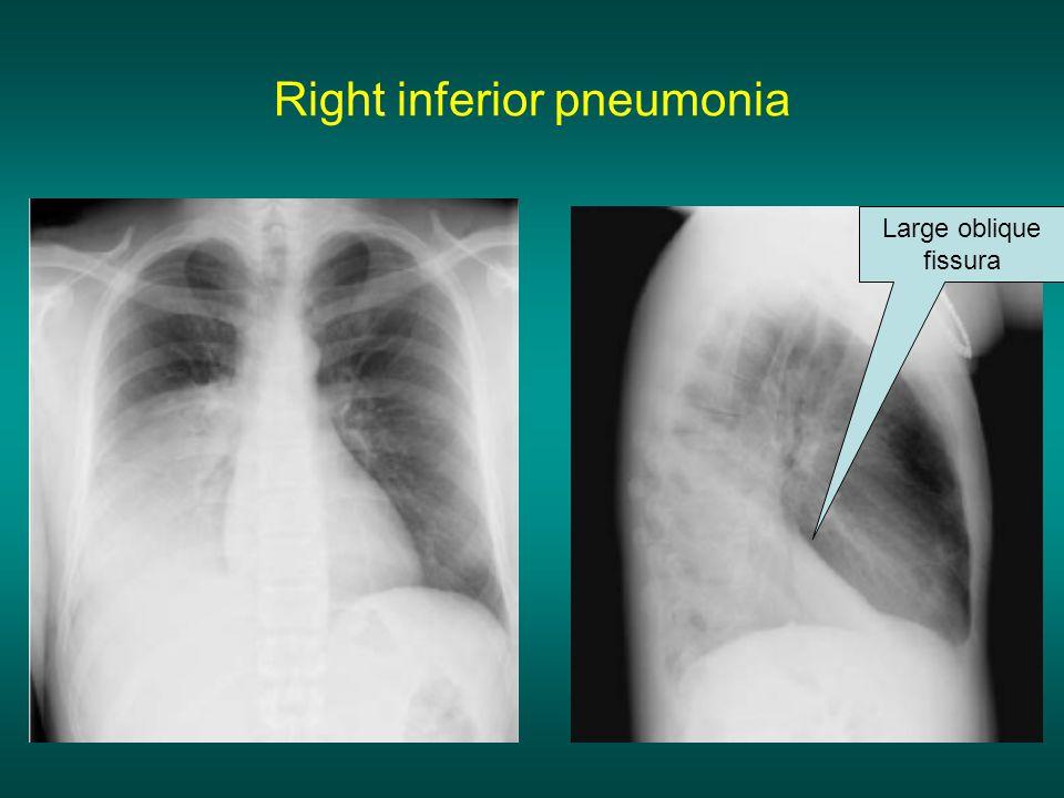 Right inferior pneumonia
