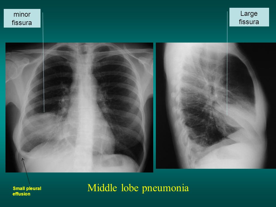Middle lobe pneumonia Large fissura minor fissura