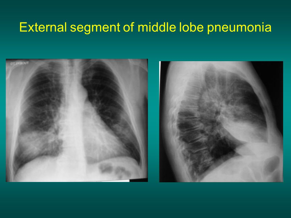 External segment of middle lobe pneumonia