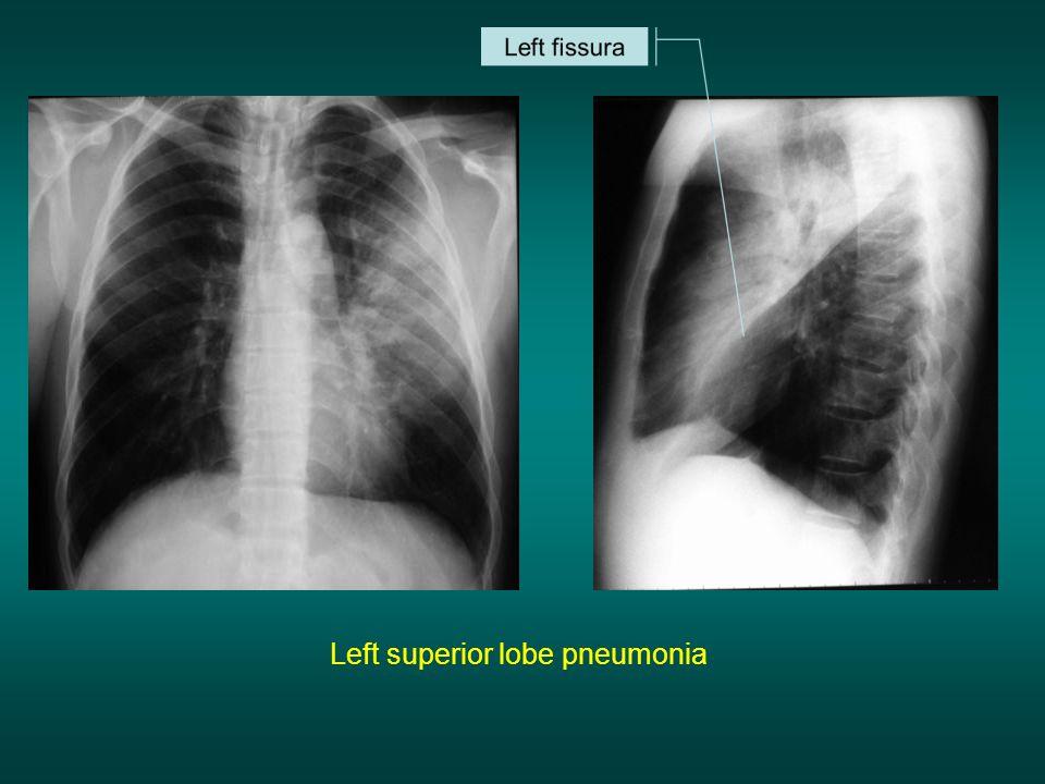 Left superior lobe pneumonia