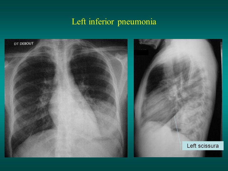 Left inferior pneumonia