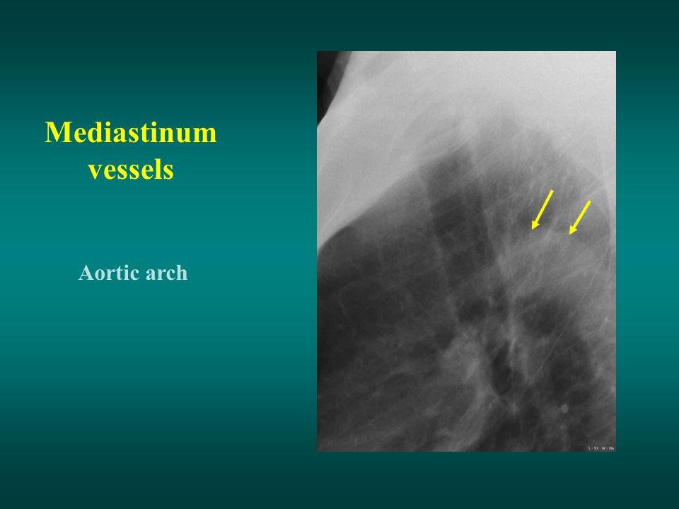 Mediastinum vessels Aortic arch